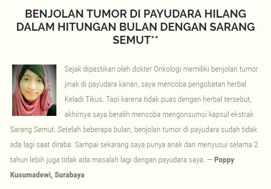 mengobati tumor payudara .